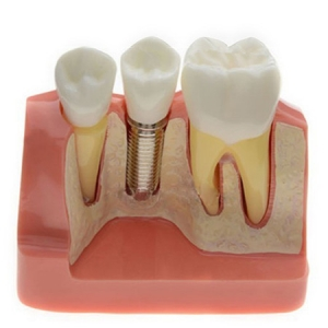 Analysis Model for Dental Implant M2017