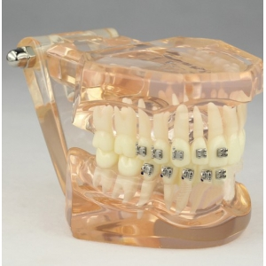 Dental Orthodontic Model with Ceramic Brackets M3009